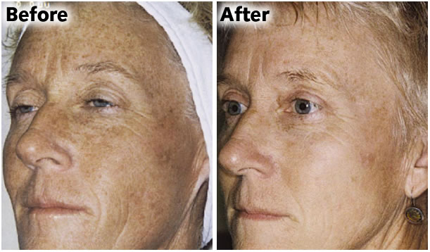 IPL rejuvenation Laser therapy process Blossom Cosmetic Laser Clinic Bangor